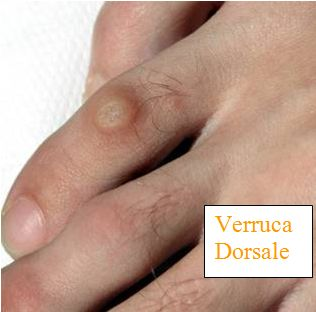 Il trattamento di un fungo di unghie fa commenti su dottori