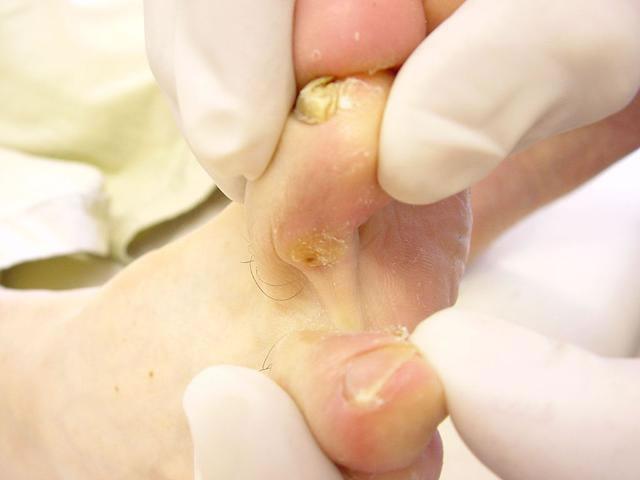 Unguento da un fungo da un corpo e unghie
