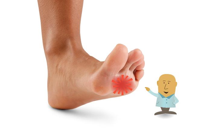 Lesione ai nervi del piede