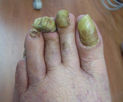Unguenti a buon mercato contro un fungo di piede