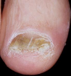 Sulle dita che sopportano il fungo anche graffia questo questo