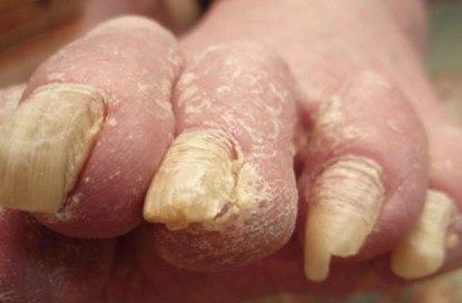 Come efficacemente trattare un fungo della pelle
