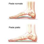 piede_piatto-01