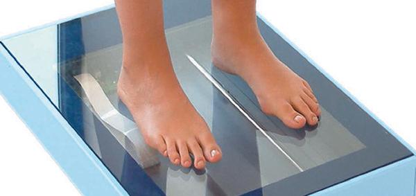 Analisi strumentale del piede e del cammino
