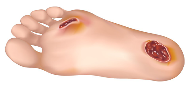 Come guarire un fungo di unghie su unghie di gambe da metodi nazionali