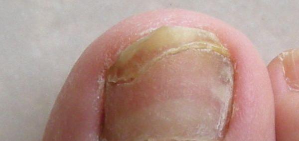 Trattamento di un fungo schiumoso su pelle di gambe